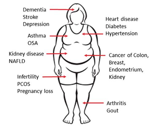 prevenir-la-obesidad-silueta-de-mujer-obesa